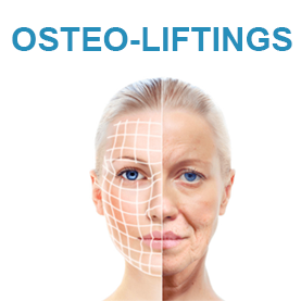 Osteo-liftings